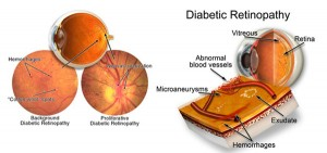 carta retinopati diabetes