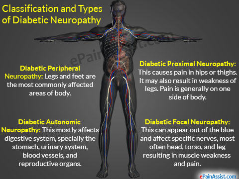 neuropathy laying down - type 2 diabetes always with peripheral neuropathy  icd 10.mayo clinic