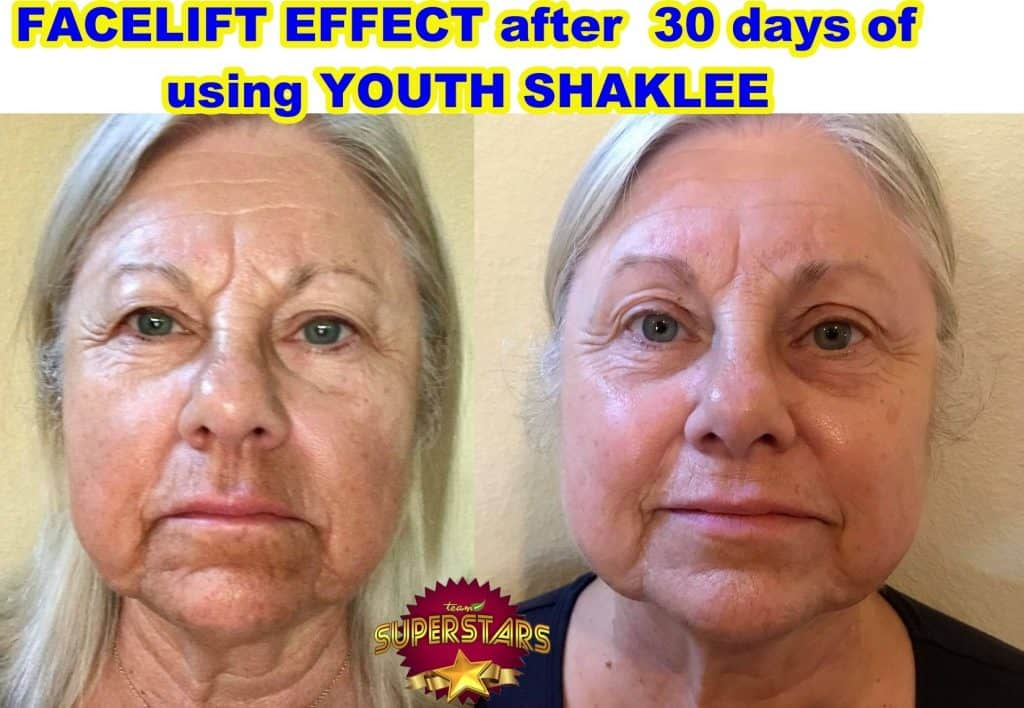 youth shaklee facelift