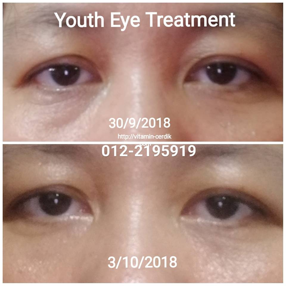 2 hari pakai Youth Restoring Eye Treatment, dah hilang eyebag