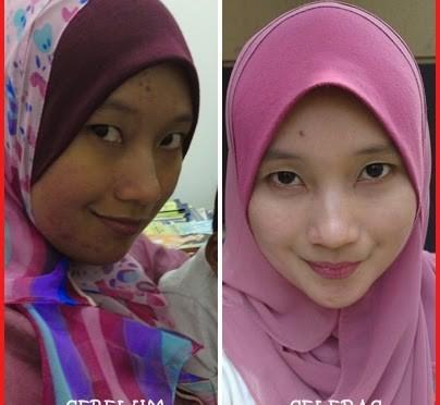 Manfaat Detox Untuk Kecantikan Kulit