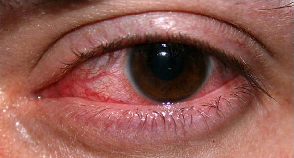Cara Rawat Bengkak Mata
