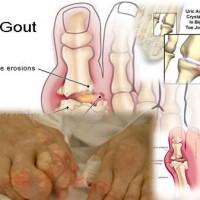 Cara Rawat Gout Tanpa Ubat
