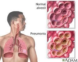 Paru-paru normal vs paru-paru dijangkiti kuman pneumonia