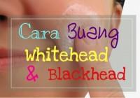 Cara Buang Blackhead dan Whitehead