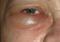 Mata Sembap Salah Satu Gejala Penyakit Buah Pinggang
