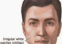 Vitiligo atau Sopak adalah salah satu penyakit autoimmune