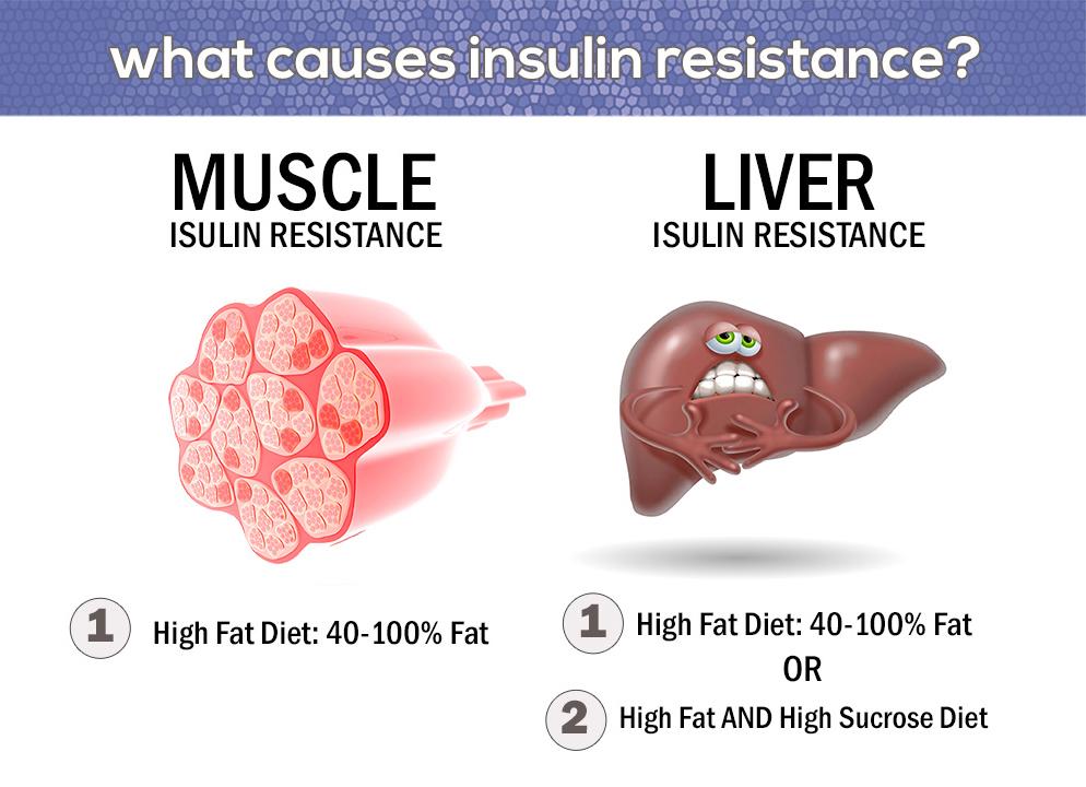 Punca insulin resistance