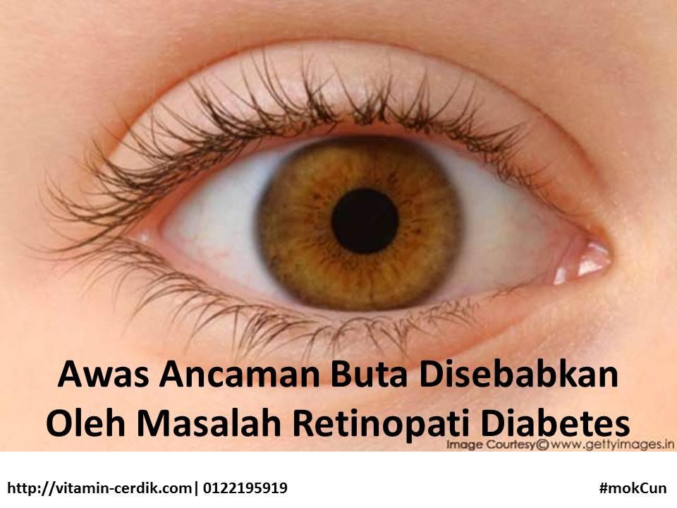 ancaman buta retinopati diabetes