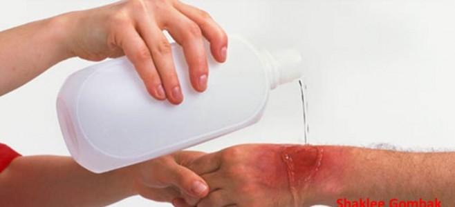 Pulih luka melecur dalam 3 hari