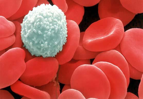 10 perkara merendahkan sistem imun