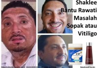 Set Sopak Shaklee bantu rawati masalah sopak atau vitiligo
