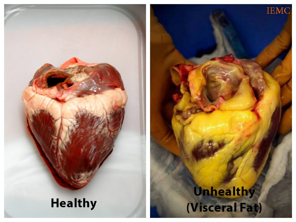 Contoh bagaimana orang dengan visceral fat tinggi menunjukkan lemak telah membungkus organnya