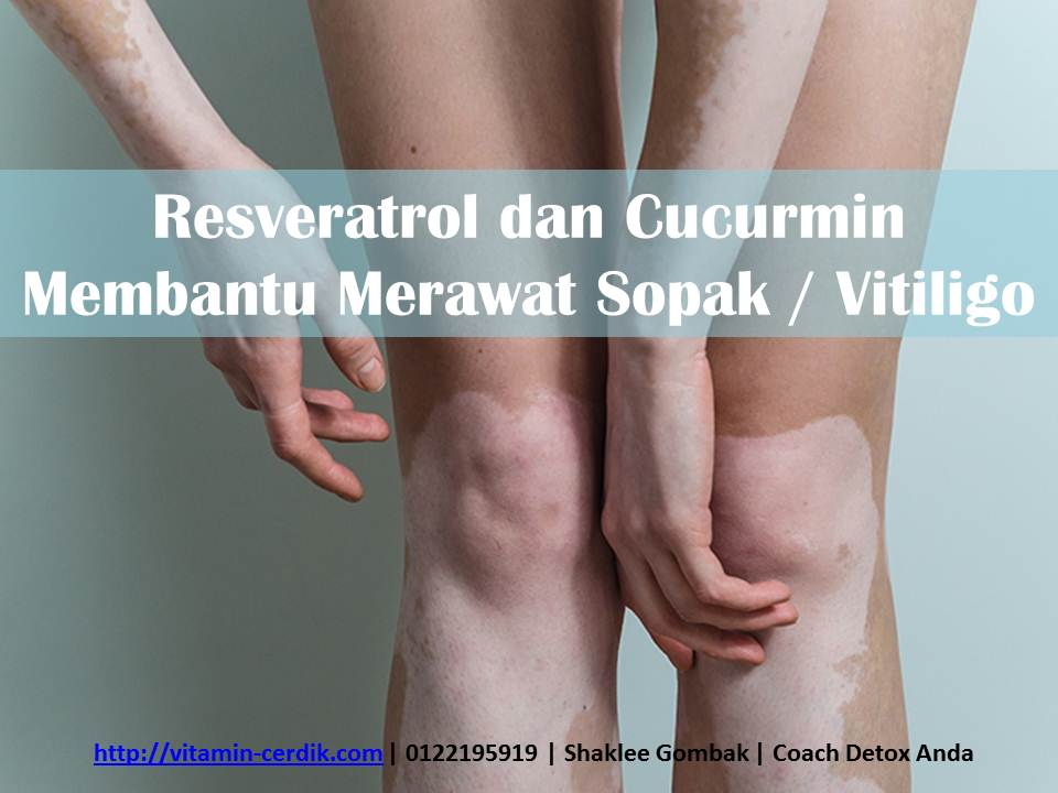 Resveratrol dan Cucurmin Membantu Merawat Sopak Vitiligo