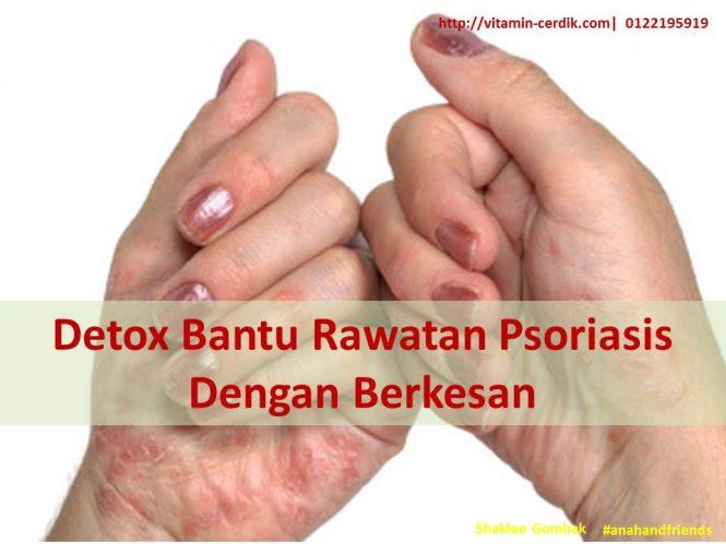 Detox Bantu Rawatan Psoriasis Dengan Berkesan