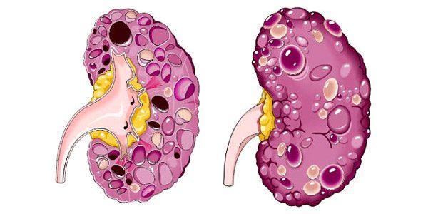 Cyst Dalam Buah Pinggang