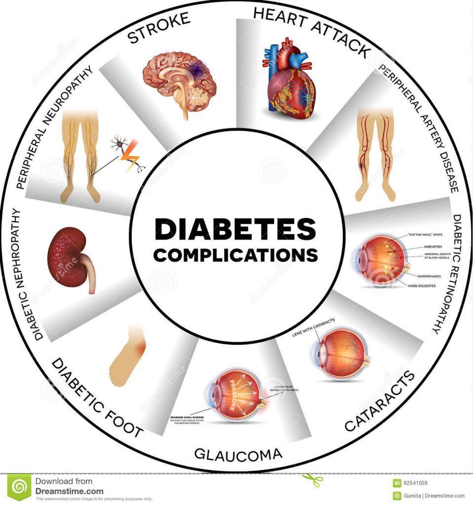 Pelbagai komplikasi akibat diabetes