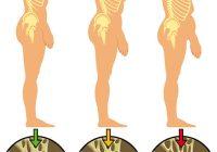 Bongkok merupakan satu tanda anda mempunyai osteoporosis