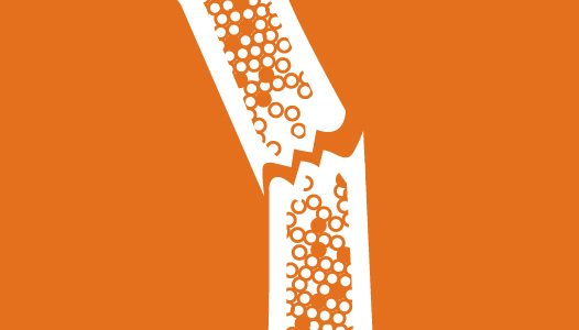 Set osteoporosis shaklee