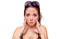 kulit sunburn shaklee collagen powder