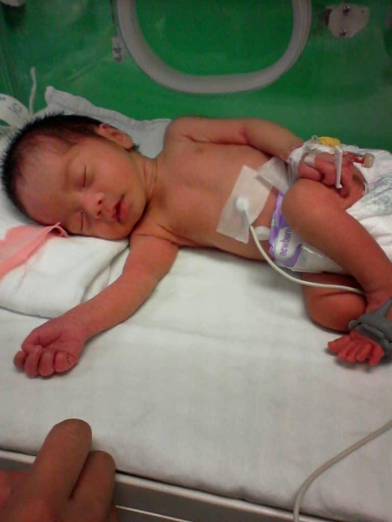 omega 3 dan bayi pramatang