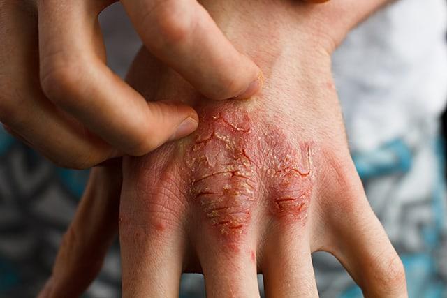 Cara Selamat dan Berkesan Rawat Psoriasis