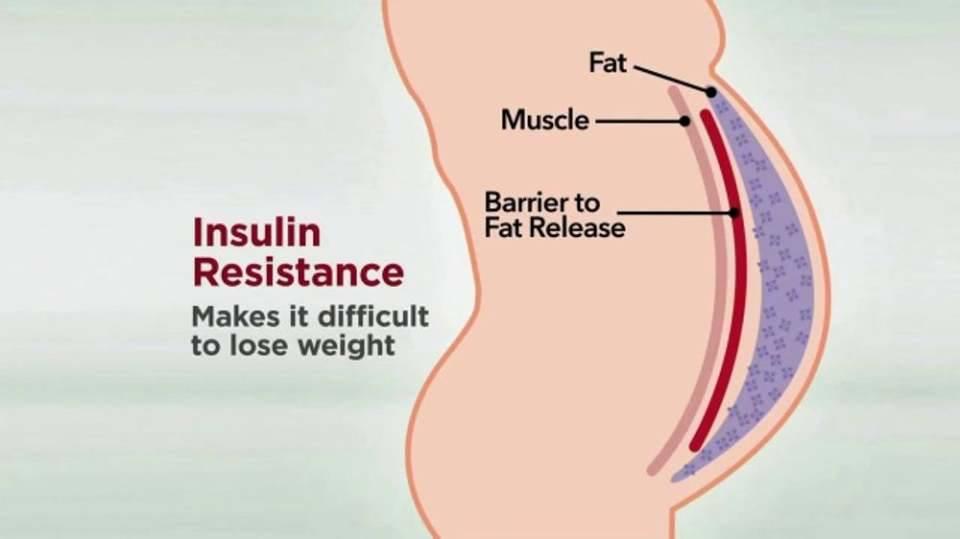 Insulin resistance punca sukar untuk kurus