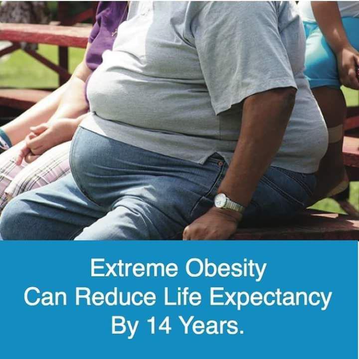 Obesiti menurunkan jangka hayat kita sehingga 14 tahun