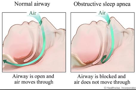 Pernafasan bagi orang normal dan orang yang alami sleep apnea