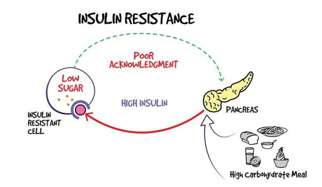 Insulin Resistance juga punca metabolism jadi perlahan