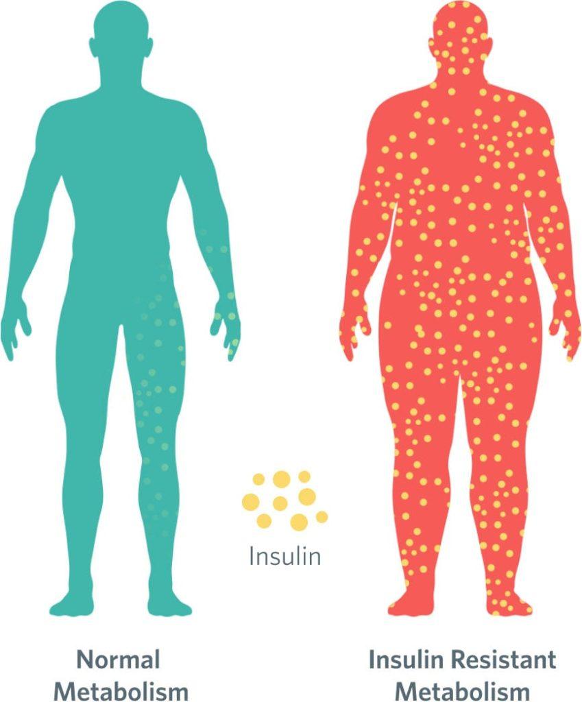 Insulin resistance merendahkan metabolism