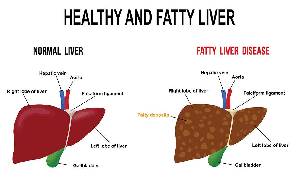 Hati yang sihat vs fatty liver