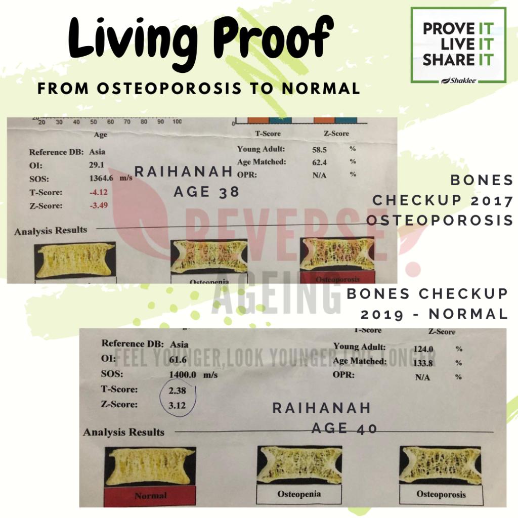 Pernah ada osteoporosis, sekarang dah normal alhamduillah